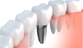 Implant Dentaire casablanca